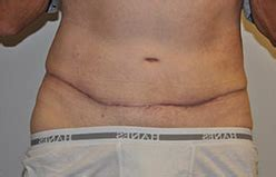 Tummy Tuck Before and After Pictures Houston, Sugar Land, TX